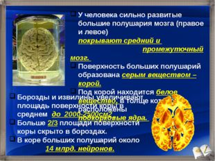 У человека сильно развитые большие полушария мозга (правое и левое) покрывают