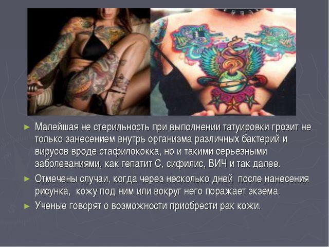 Малейшая не стерильность при выполнении татуировки грозит не только занесение...