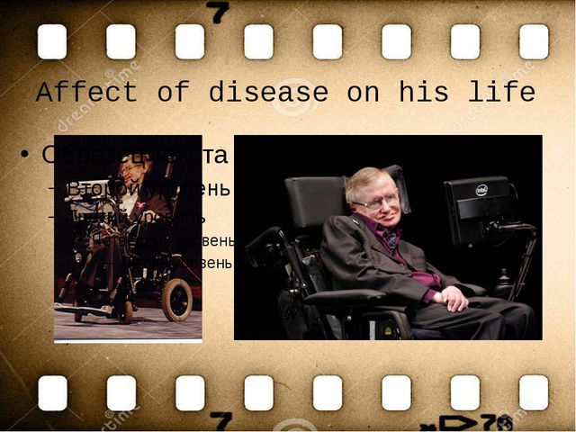 Affect of disease on his life