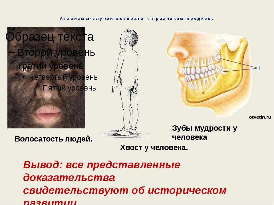 Атавизмы-случаи возврата к признакам предков. Волосатость людей. Хвост у чело...