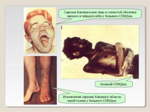 Саркома Капоши кожи лица и слизистой оболочки мягкого и твёрдого нёба у больн