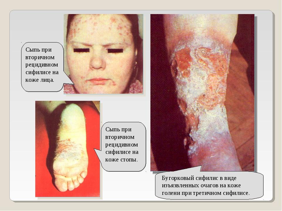 Бугорковый сифилис в виде изъязвленных очагов на коже голени при третичном си...