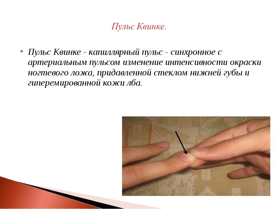 Пульс Квинке - капиллярный пульс - синхронное с артериальным пульсом изменени...