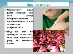 Про «зелёнку» Обработайте края раны зеленкой, для того чтобы воспрепятствоват