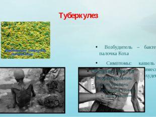 Туберкулез Возбудитель – бактерия палочка Коха Симптомы: кашель с мокротой и