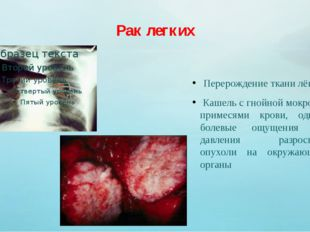 Рак легких Перерождение ткани лёгких Кашель с гнойной мокротой с примесями кр