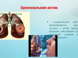 Бронхиальная астма Аллергическое заболевание, проявляющееся признаками удушья