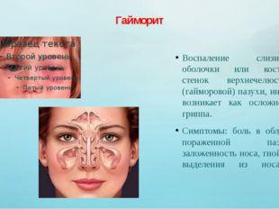 Гайморит Воспаление слизистой оболочки или костных стенок верхнечелюстной (га