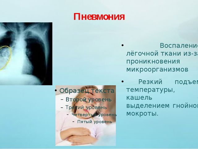 Пневмония Воспаление лёгочной ткани из-за проникновения микроорганизмов Резки...