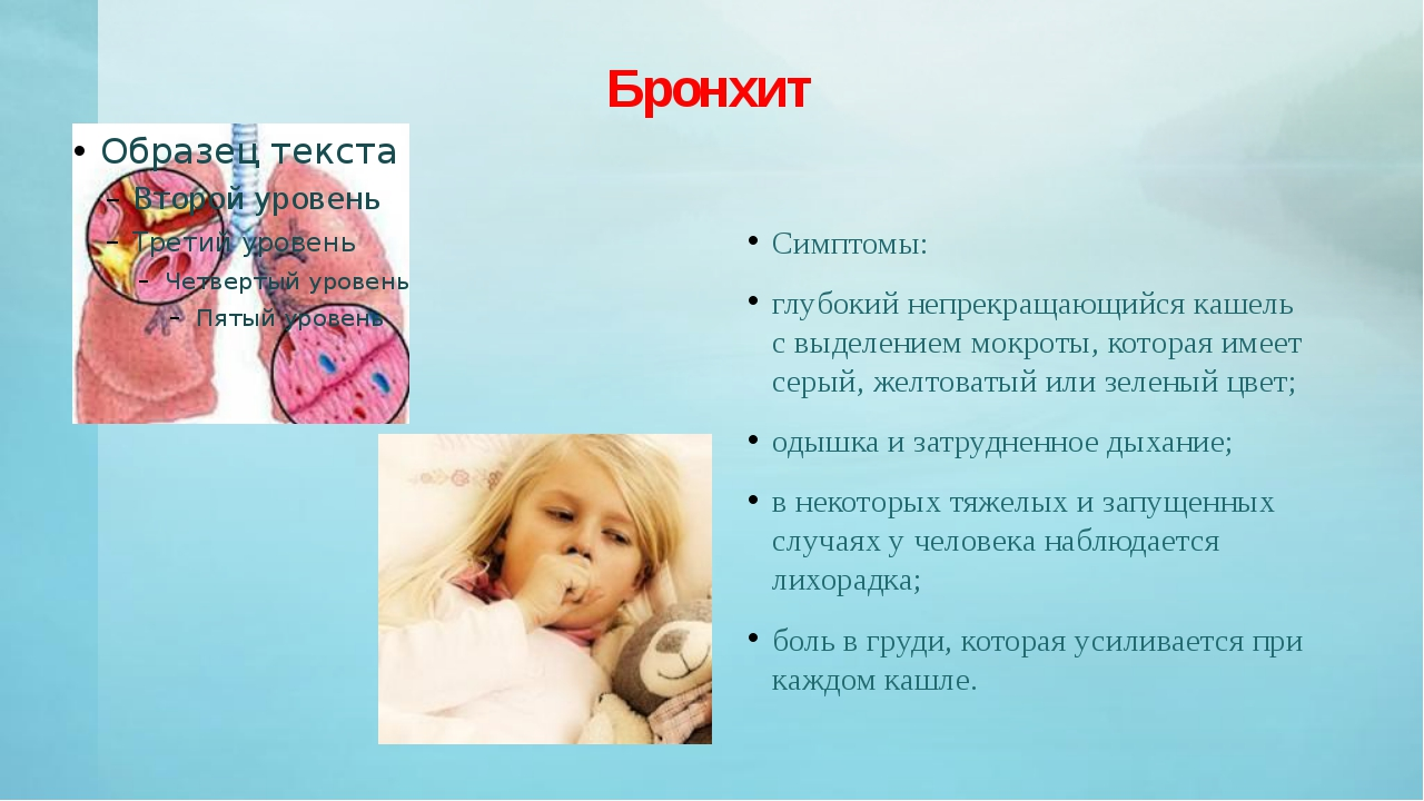 Бронхит Симптомы: глубокий непрекращающийся кашель с выделением мокроты, кото...