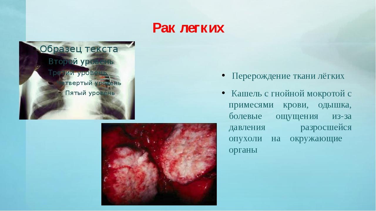 Рак легких Перерождение ткани лёгких Кашель с гнойной мокротой с примесями кр...