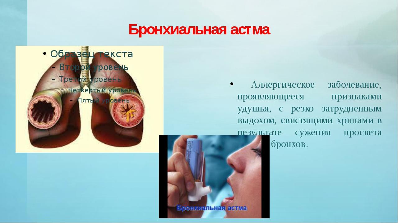 Бронхиальная астма Аллергическое заболевание, проявляющееся признаками удушья...