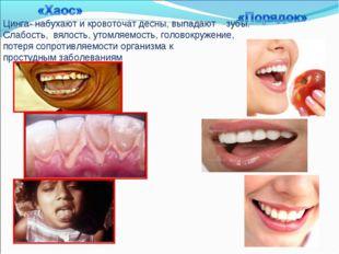 Цинга- набухают и кровоточат десны, выпадают зубы. Слабость, вялость, утомля