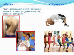 Рахит- деформация костей, нарушение нервной системы, раздражительность, слабо