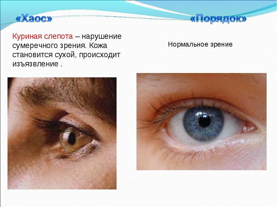 Куриная слепота – нарушение сумеречного зрения. Кожа становится сухой, происх...