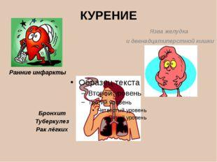 КУРЕНИЕ Язва желудка и двенадцатиперстной кишки Бронхит Туберкулез Рак лёгких