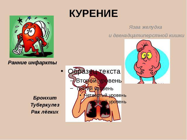 КУРЕНИЕ Язва желудка и двенадцатиперстной кишки Бронхит Туберкулез Рак лёгких...