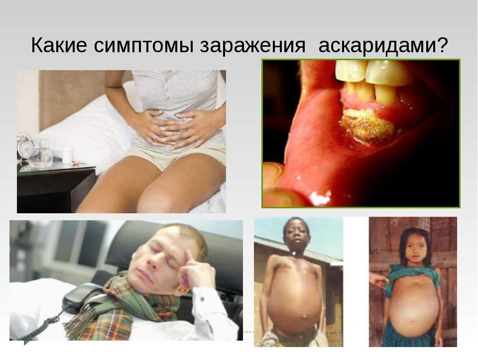 Какие симптомы заражения аскаридами?