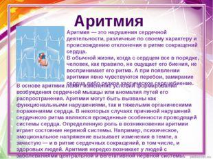 Аритмия Аритмия — это нарушения сердечной деятельности, различные по своему х