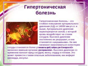 Гипертоническая болезнь – это стойкое повышение артериального давления (АД) о