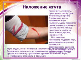 Наложение жгута Конечность обнажить, приподнять кверху (для мобилизации крови