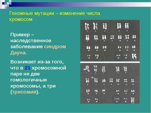 Геномные мутации – изменение числа хромосом Пример – наследственное заболеван...