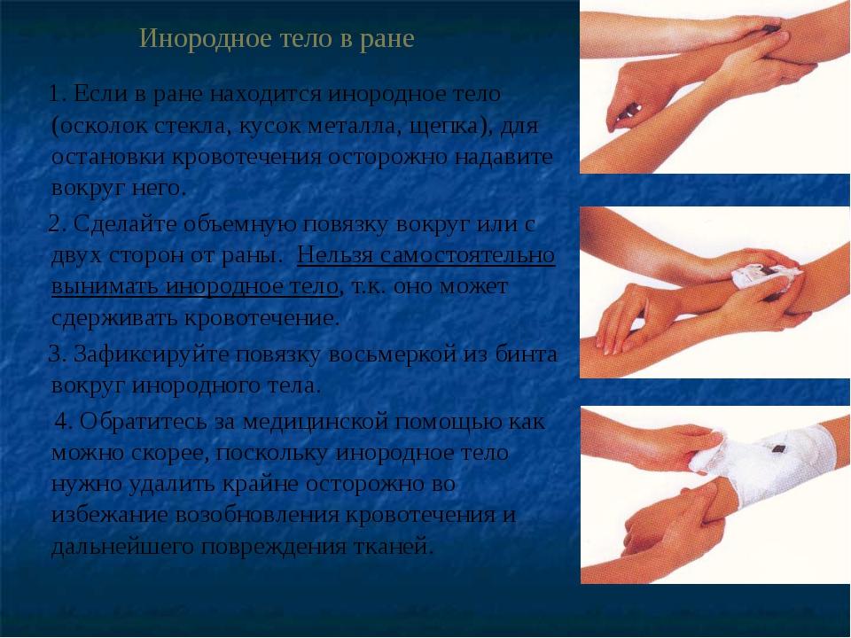Инородное тело в ране 1. Если в ране находится инородное тело (осколок стекл...