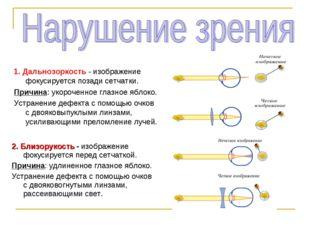 1. Дальнозоркость - изображение фокусируется позади сетчатки. Причина: укороч