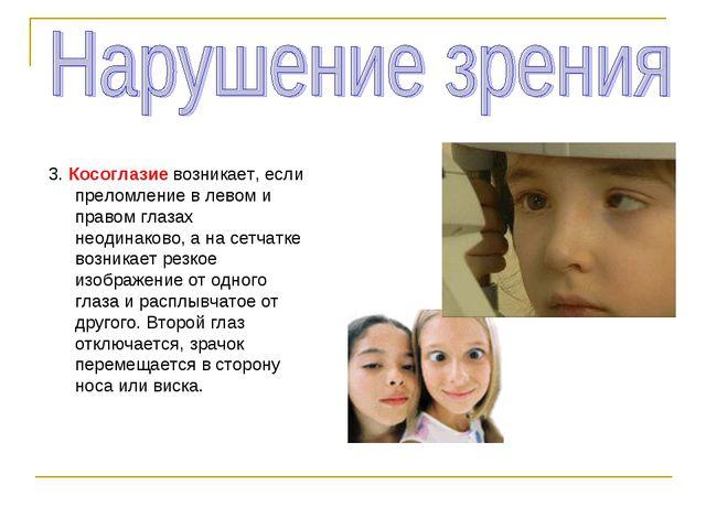 3. Косоглазие возникает, если преломление в левом и правом глазах неодинаково...