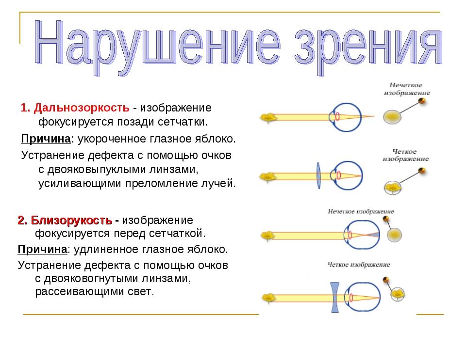 1. Дальнозоркость - изображение фокусируется позади сетчатки. Причина: укороч...