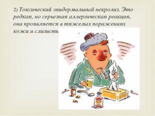 2) Токсический эпидермальный некролиз. Это редкая, но серьезная аллергическая