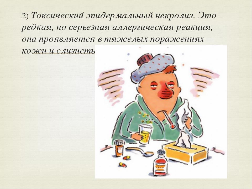 2) Токсический эпидермальный некролиз. Это редкая, но серьезная аллергическая...
