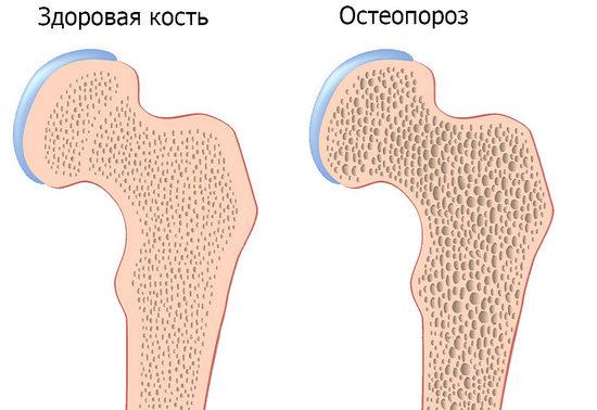 C:\Users\1\Desktop\osteoporoz.jpg