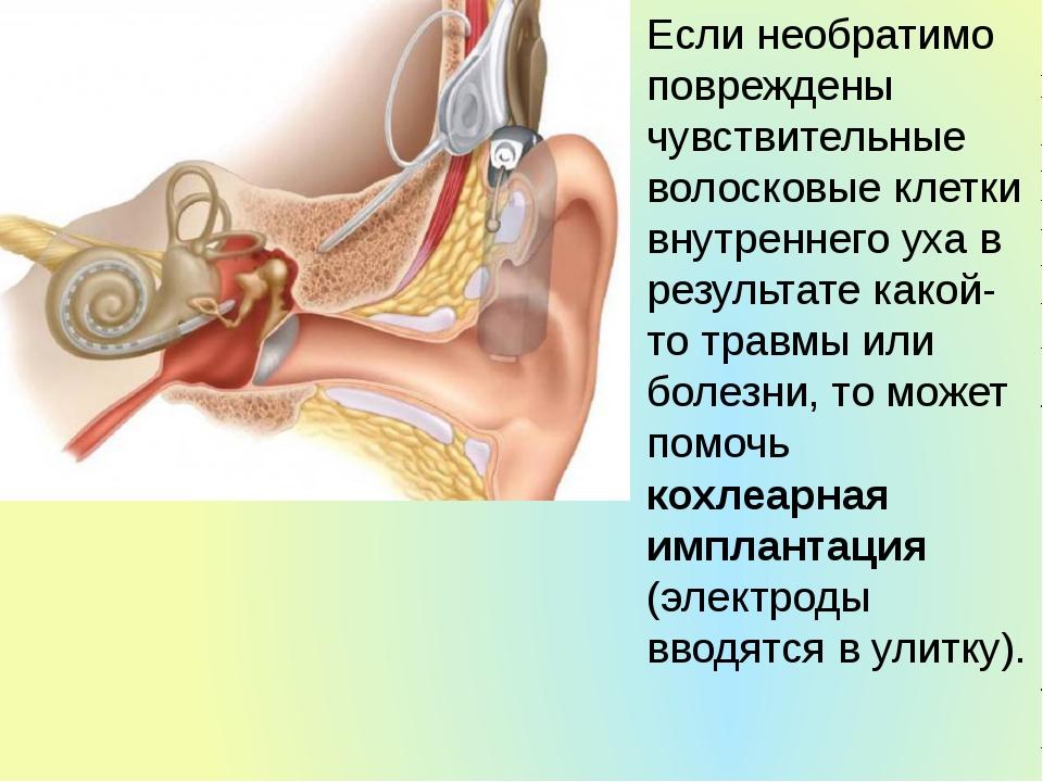Если необратимо повреждены чувствительные волосковые клетки внутреннего уха в...