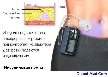 помпа при сахарном диабете цена