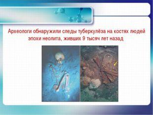 Археологи обнаружили следы туберкулёза на костях людей эпохи неолита, живших