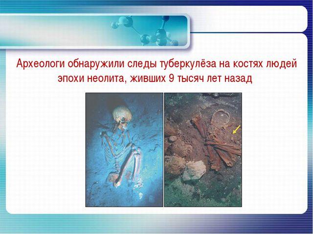 Археологи обнаружили следы туберкулёза на костях людей эпохи неолита, живших...