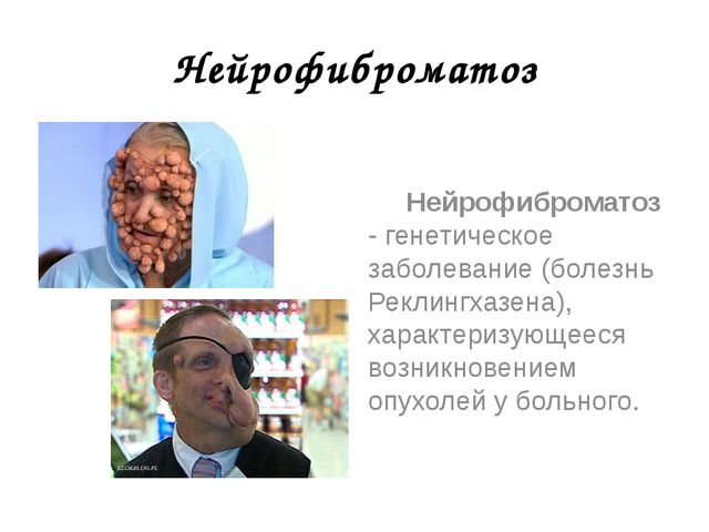 Нейрофиброматоз Нейрофиброматоз - генетическое заболевание (болезнь Реклингха...