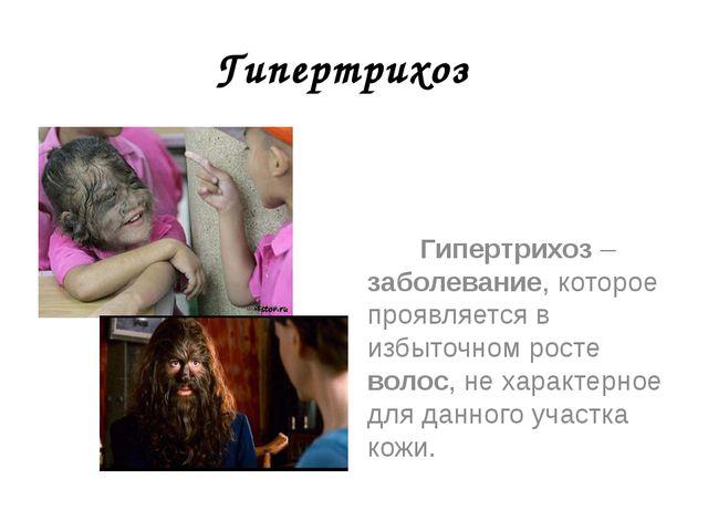 Гипертрихоз Гипертрихоз – заболевание, которое проявляется в избыточном росте...