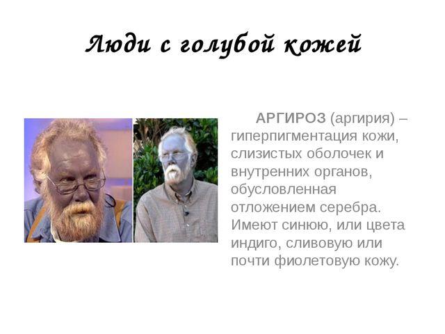 Люди с голубой кожей АРГИРОЗ (аргирия) – гиперпигментация кожи, слизистых обо...