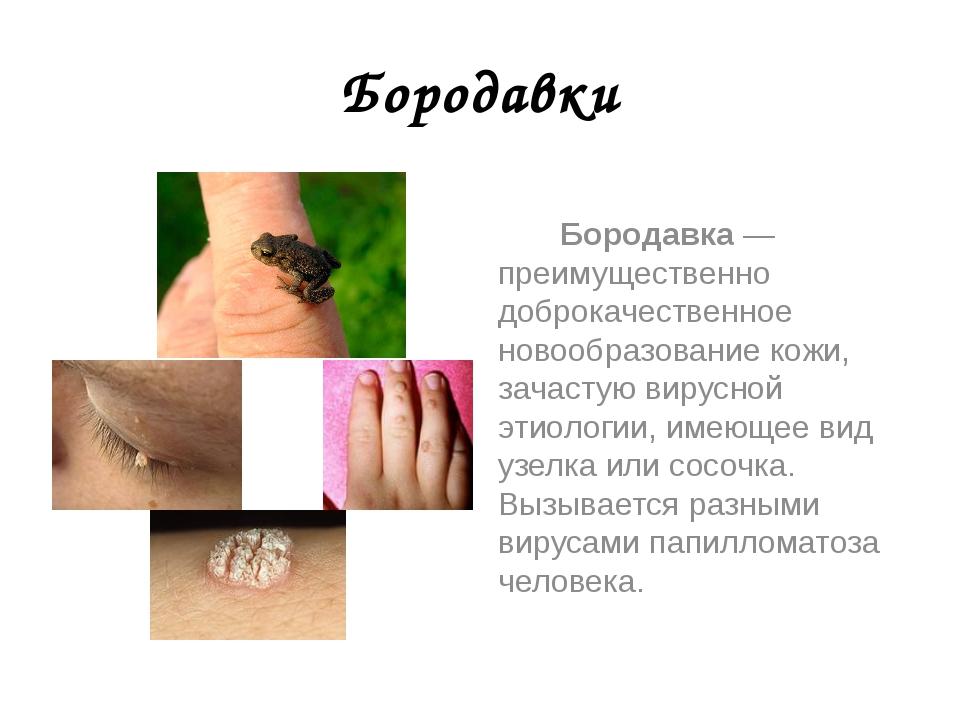 Бородавки Бородавка — преимущественно доброкачественное новообразование кожи,...