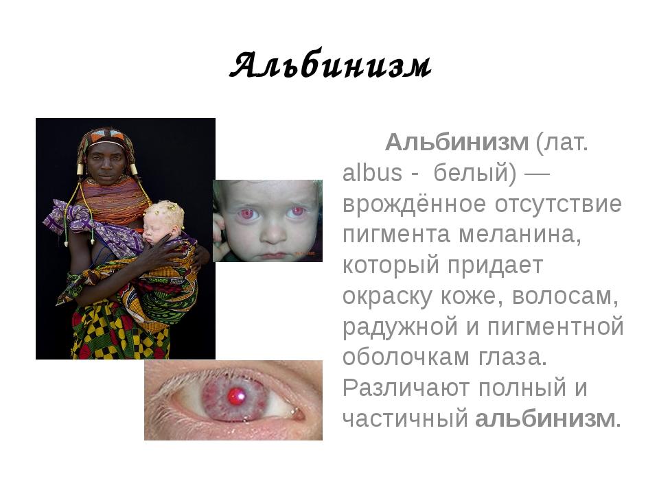 Альбинизм Альбинизм (лат. albus - белый) — врождённое отсутствие пигмента мел...