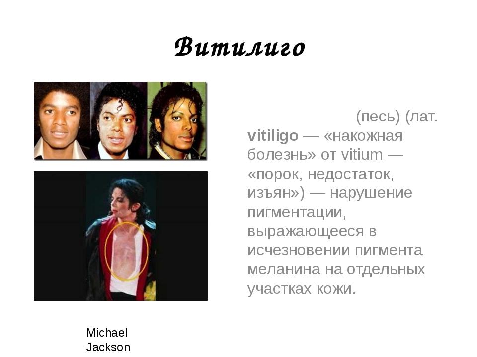 Витилиго Витили́го (песь) (лат. vitiligo — «накожная болезнь» от vitium — «по...