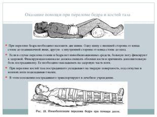 Оказание помощи при переломе бедра и костей таза При переломе бедра необходи