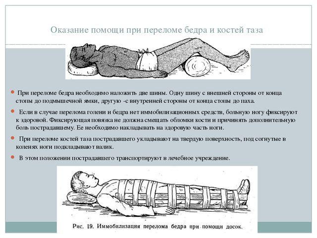 Оказание помощи при переломе бедра и костей таза При переломе бедра необходи...