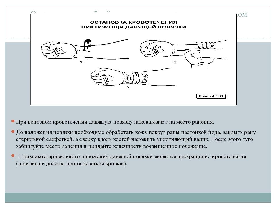 Оказание доврачебной помощи при венозном и капиллярном кровотечениях При вен...