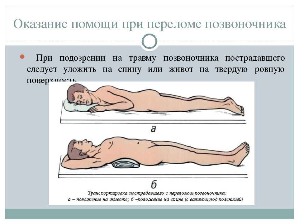 Оказание первой помощи пострадавшему при переломе позвоночника