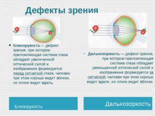Дефекты зрения Близорукость Дальнозоркость Дальнозоркость — дефект зрения, п