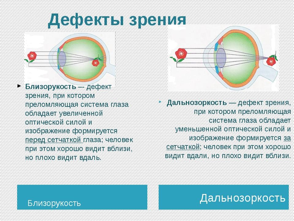 Дефекты зрения Близорукость Дальнозоркость Дальнозоркость — дефект зрения, п...