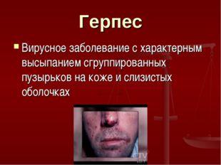 Герпес Вирусное заболевание с характерным высыпанием сгруппированных пузырько